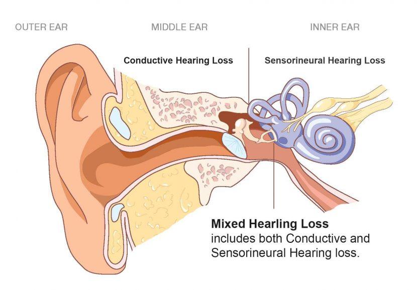 mage result for sensorineural hearing loss
